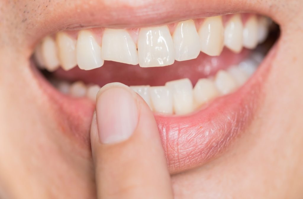 Person pointing at their injured, chipped tooth
