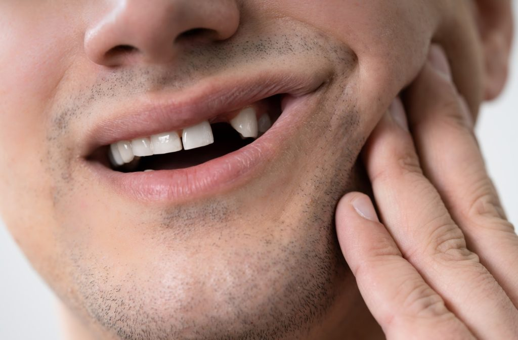 Man with a knocked-out tooth holding his cheek in pain